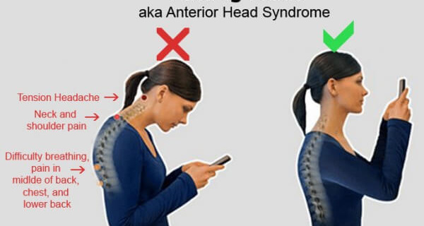 Bent Neck From Texting